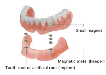 dental magnetic attachment electro magnetic products aichi steel